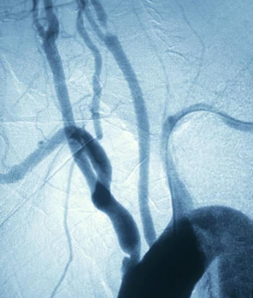 Vertebral Artery Photograph - Vascular Disease In Smoker by Zephyr/science Photo Library