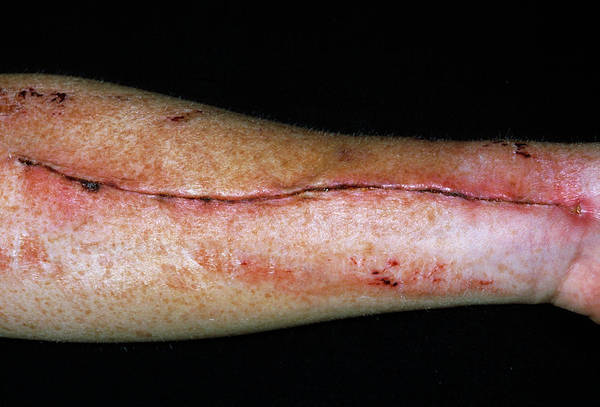 Wall Art - Photograph - Vein Removal Scar by Dr P. Marazzi/science Photo Library