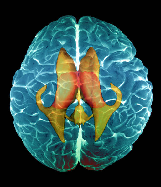 Brain Scan Photograph - Ventricles Of Brain by Zephyr/science Photo Library