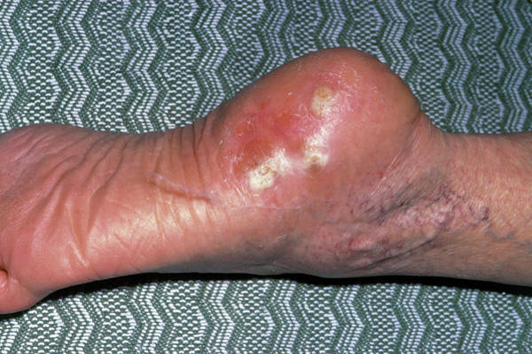 Wart Wall Art - Photograph - Verrucae Affecting Heel Of The Foot by James Stevenson/science Photo Library