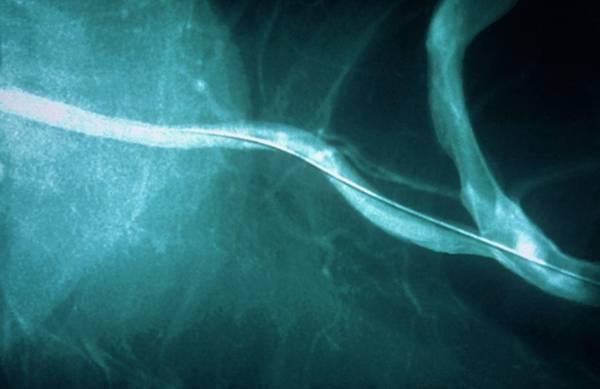 Vertebral Artery Photograph - Vertebral Artery Post-angioplasty by Gjlp/cnri/science Photo Library