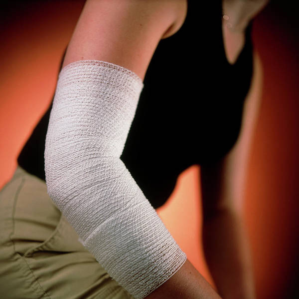 Bandage Photograph - View Of The Bandaged Elbow Of A Young Woman by Saturn Stills/science Photo Library
