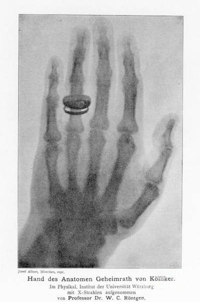 Photograph - W. Roentgen: X-ray (1896) by Granger