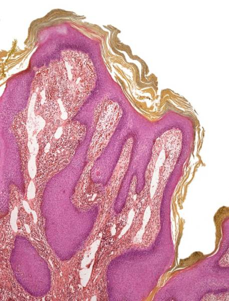 Wart, Light Micrograph Art Print by Steve Gschmeissner/spl