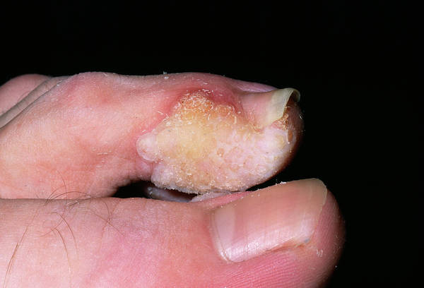 Wart Wall Art - Photograph - Warts On A Toe by Dr P. Marazzi/science Photo Library