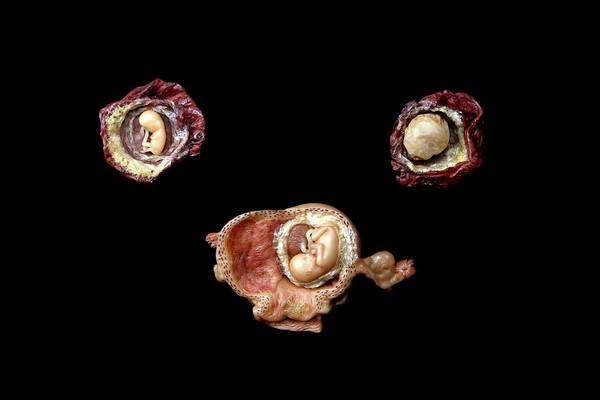Anatomical Model Wall Art - Photograph - Wax Models Of Human Foetuses by Gregory Davies