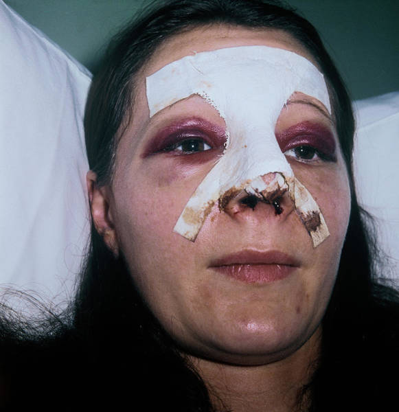 Dressing Photograph - Woman After Rhinoplasty by Alex Bartel/science Photo Library