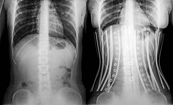 Comparative Wall Art - Photograph - Woman Wearing A Corset X-ray by Photostock-israel