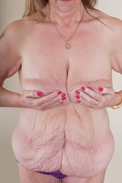 Excess Photograph - Woman With Excess Skin After Weight Loss by Science Photo Library