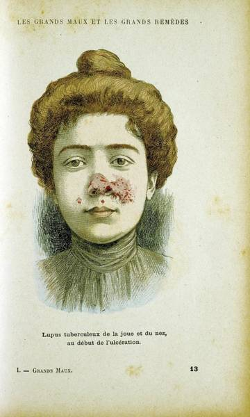Lupus Wall Art - Photograph - Woman With Lupus Vulgaris by Universal History Archive/uig