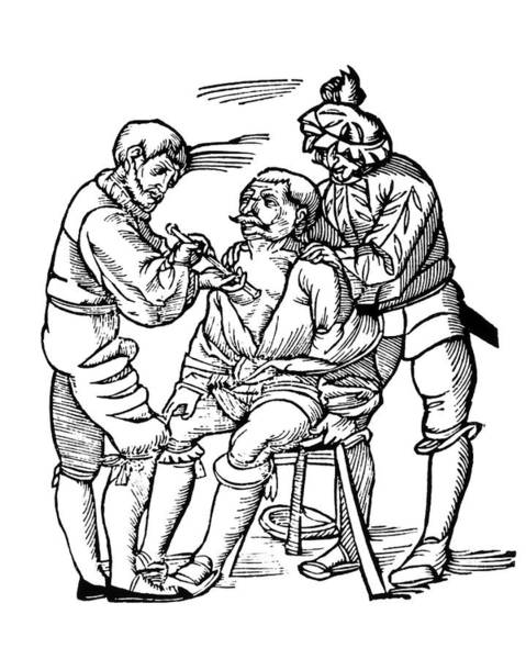 Surgery Photograph - Woodcut Of A Wounded Man Being Treated by Dr Jeremy Burgess/science Photo Library