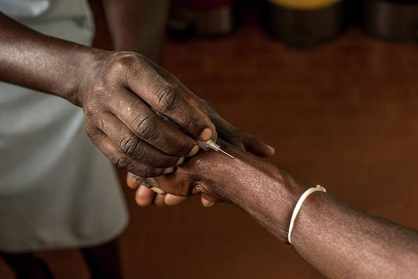 Developing Country Photograph - Wrist Catheter Insertion by Mauro Fermariello/science Photo Library