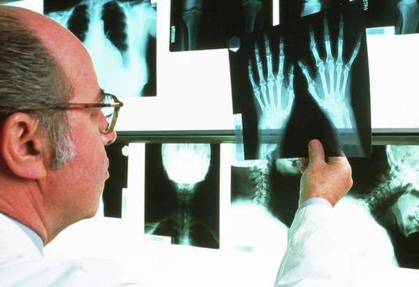 Wall Art - Photograph - X-ray Diagnosis Of Rheumatoid Arthritis by Mauro Fermariello/science Photo Library