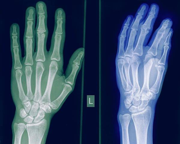 Radiograph Wall Art - Photograph - X-ray Of A Healthy Hand by Photostock-israel