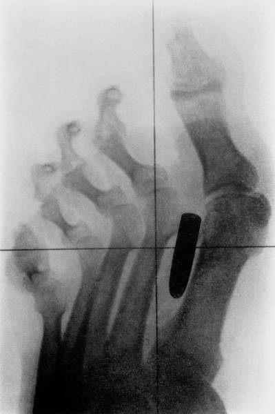 Diagnosis Wall Art - Photograph - X-ray Of Bullet In Foot Of Boer War Soldier by Science Photo Library