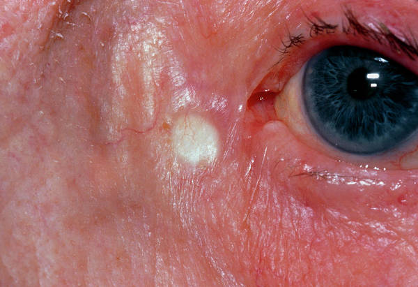 Deposits Wall Art - Photograph - Xanthelasma Found Close To Elderly Woman's Eyelid by Dr P. Marazzi/science Photo Library