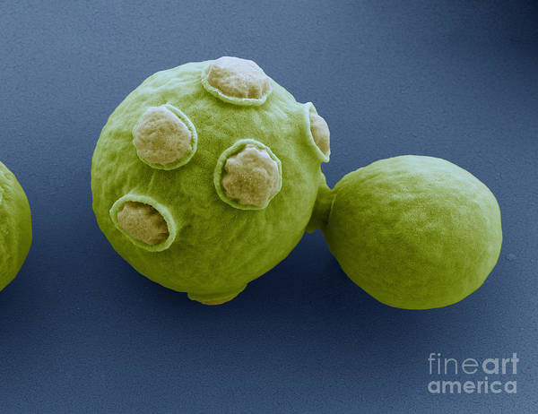 Photograph - Yeast Cells Sem by Eye of Science