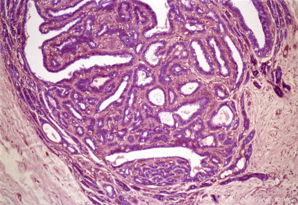 Cystic Duct Photograph - Breast Fibroadenoma, Light Micrograph by Steve Gschmeissner