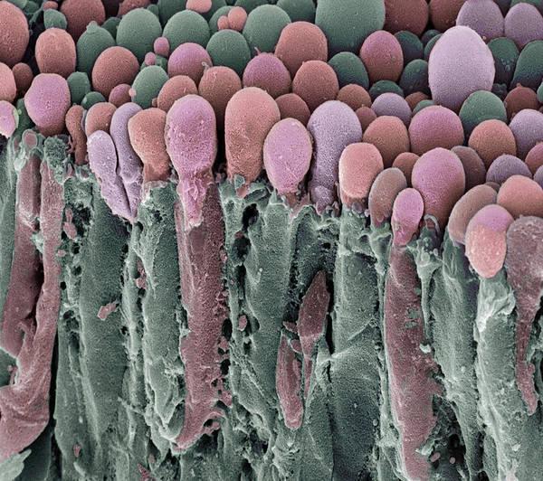 Brain Freeze Photograph - Choroid Plexus Secretory Cells, Sem by Steve Gschmeissner