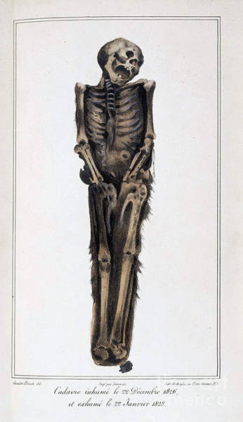Photograph - Decomposition On Exhumed Bodies, 1831 by Science Source
