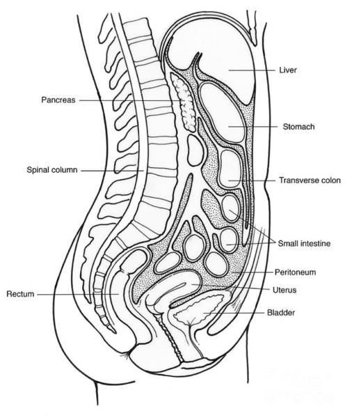 Small Intestine Rupture