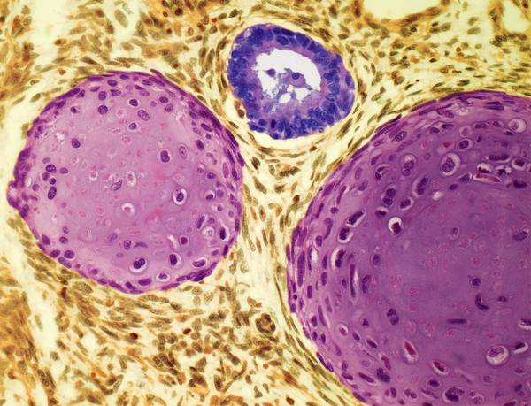 Scientific Illustration Digital Art - Testicular Cancer, Light Micrograph by Steve Gschmeissner