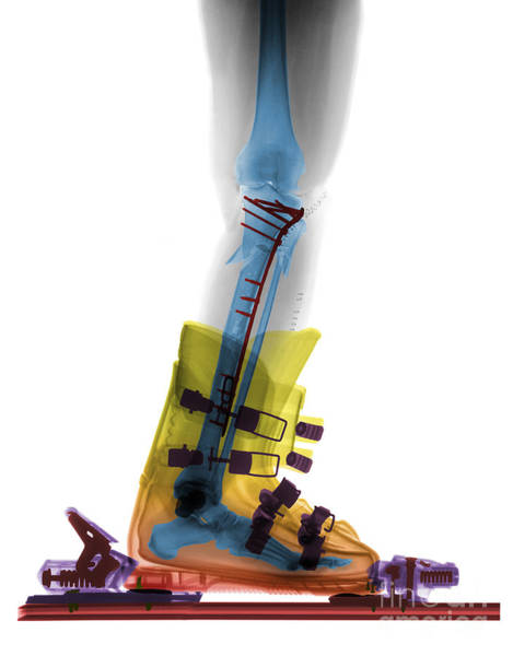 Photograph - X-ray Of Broken Bones In Ski Boot by Ted Kinsman