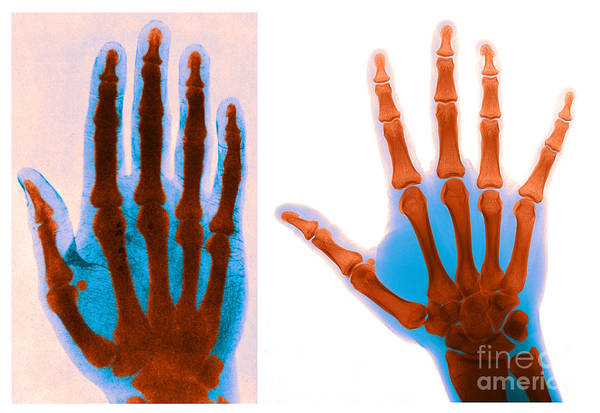 Photograph - Early And Modern Hand X-rays by Medical Body Scans