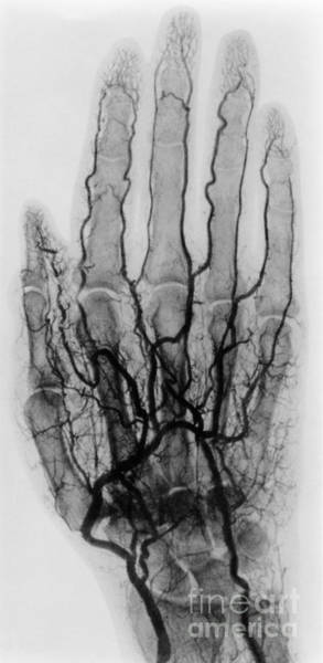 Photograph - Hand Arteriogram by Science Source