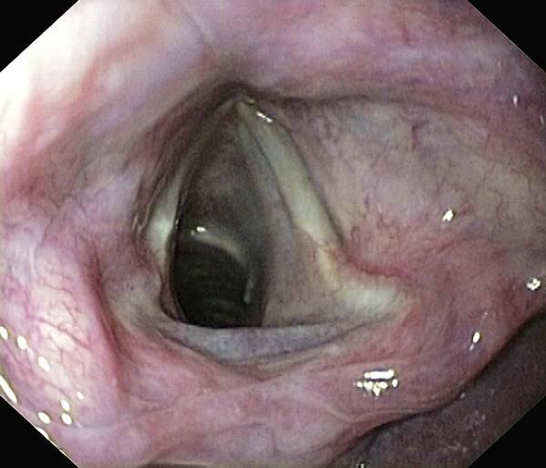 Wall Art - Photograph - Healthy Larynx by Gastrolab