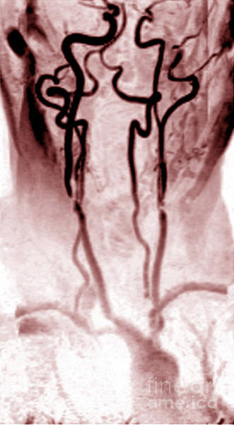 Photograph - Stenosis Of The Internal Carotid by Medical Body Scans