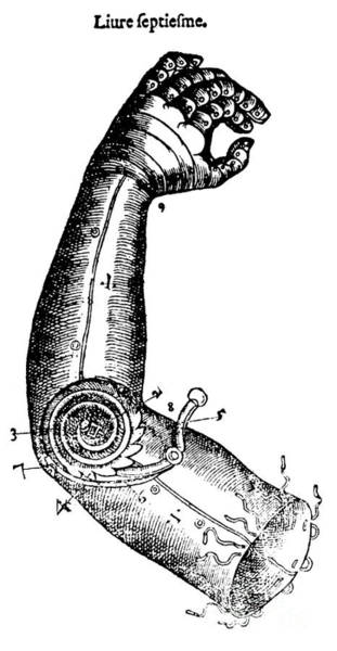 Photograph - Artificial Arm Designed By Ambroise by Science Source