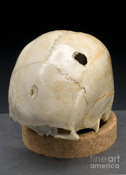 Photograph - Blunt Force Hammer Trauma To Skull by Science Source