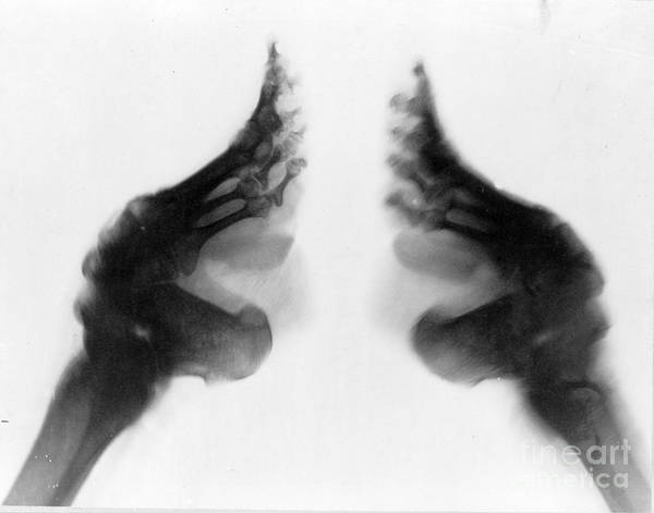 Photograph - Bound Feet X-ray by Science Source