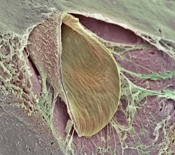 Brain Freeze Photograph - Brain Artery, Sem by Steve Gschmeissner