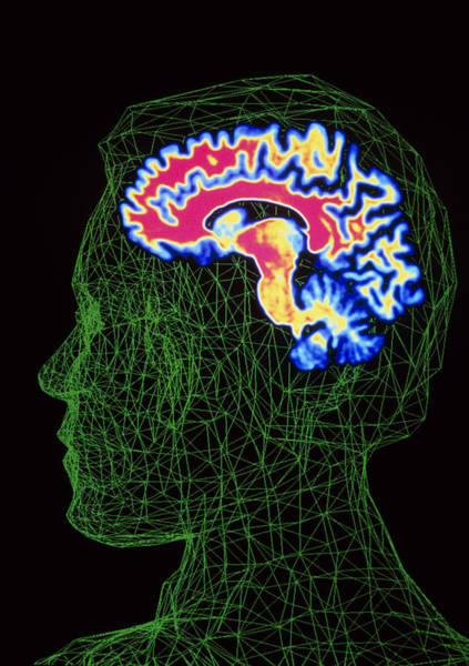 Contour Map Photograph - Brain Scan Superimposed On Contour Of Human Head by Pasieka