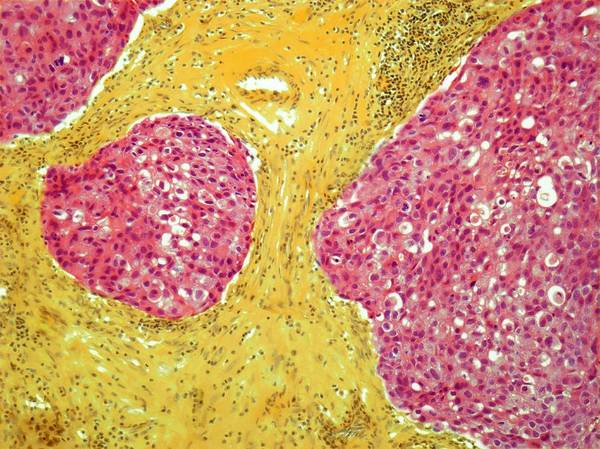Scientific Illustration Digital Art - Breast Cancer, Light Micrograph by Steve Gschmeissner