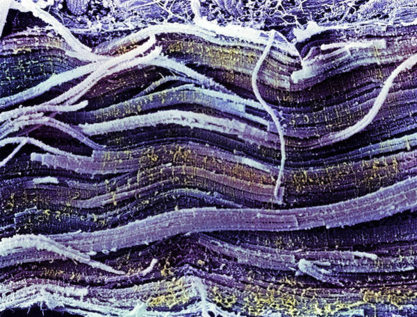 Voluntary Muscle Photograph - Coloured Sem Of Skeletal (striated) Muscle Fibres by Steve Gschmeissner