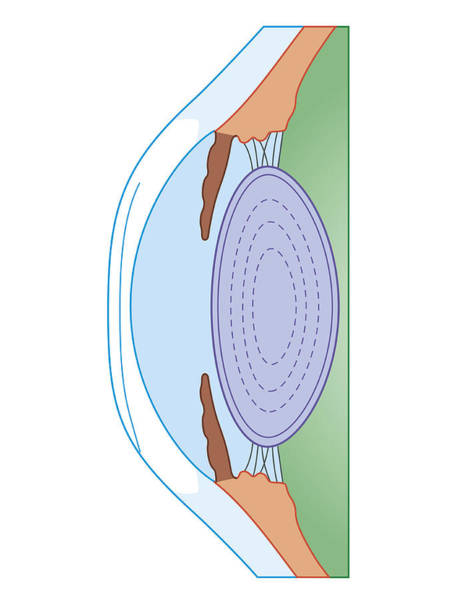 Assistance Digital Art - Cross Section Biomedical Illustration Of Human Eye After Corrective Surgery For Myopia by Dorling Kindersley