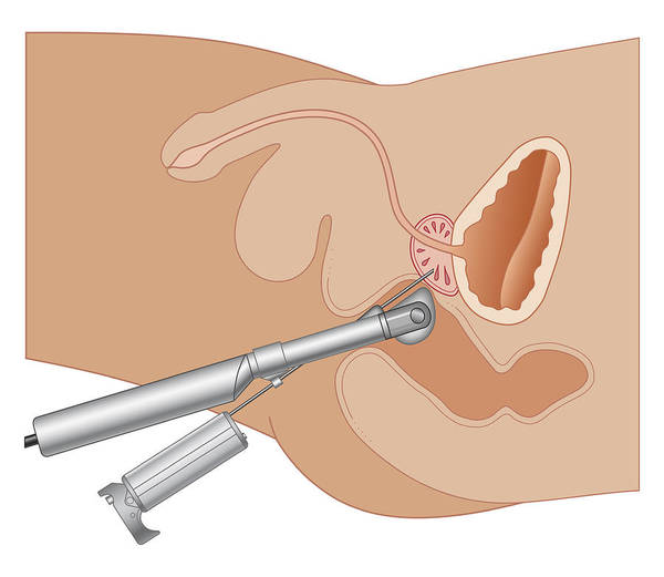 Bladder Digital Art - Cross Section Biomedical Illustration Of Prostate Gland Needle Biopsy Procedure by Dorling Kindersley
