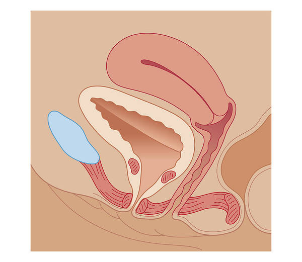 Bladder Digital Art - Cross Section Biomedical Illustration Of Urinary Incontinence In Female by Dorling Kindersley