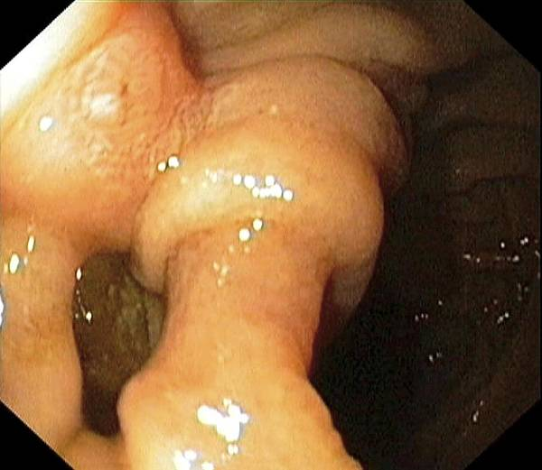 Common Bile Duct Photograph - Diverticulum Of The Small Intestine by Gastrolab