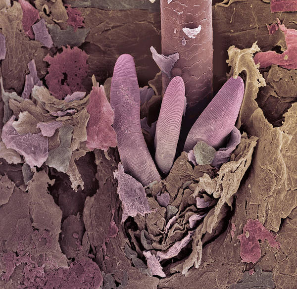 Wall Art - Photograph - Eyelash Mite Tails, Sem by Steve Gschmeissner