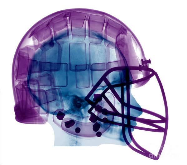 Photograph - Football Helmet X-ray by Ted Kinsman