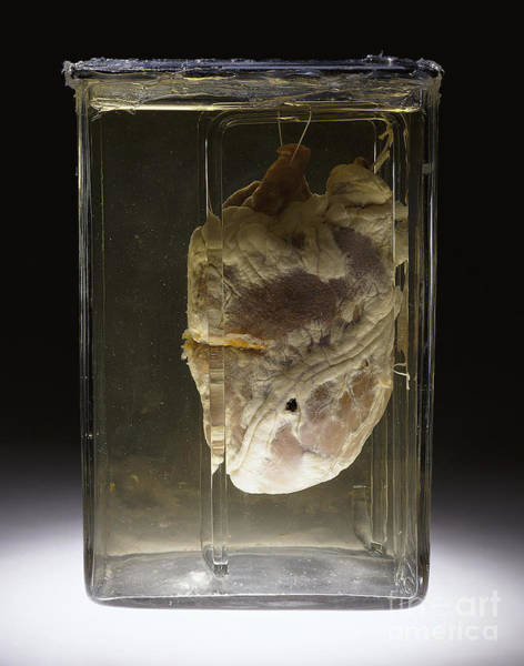 Photograph - Forensic Evidence, Heart Perforated by Science Source