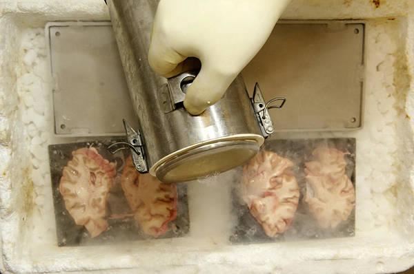 Brain Freeze Photograph - Freezing Human Brain Slices by Volker Steger