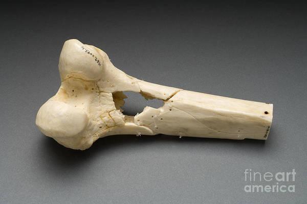 Photograph - Human Distal Femur, Gunshot Wound, 1984 by Science Source