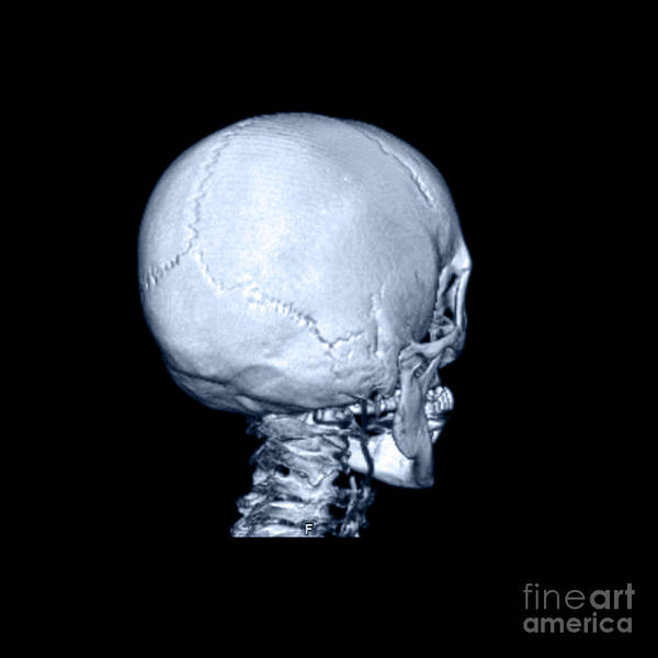 Temporal Bone Wall Art - Photograph - Human Skull by Medical Body Scans