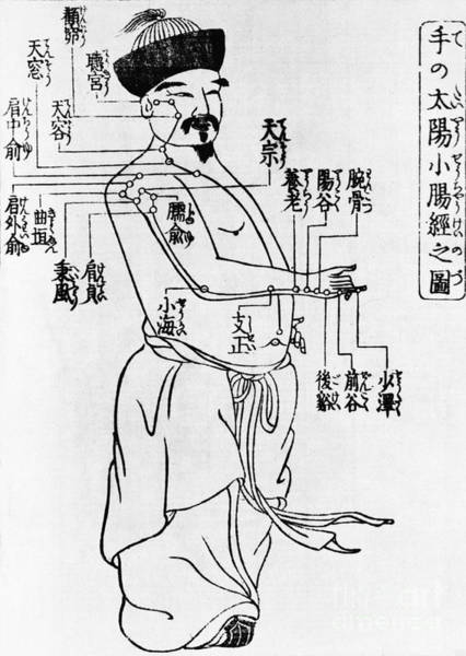 Tcm Wall Art - Photograph - Japanese Illustration Of Acupuncture by Science Source