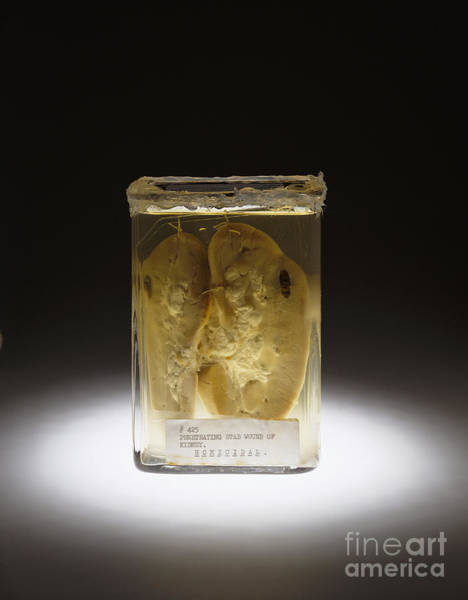 Photograph - Kidney, Stab Wound, 1937 by Science Source